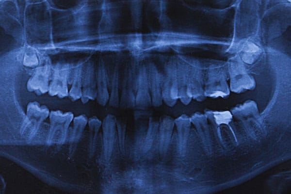 Root Canal Therapy x-ray